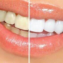 Diş Beyazlatma Şeritleri Crest 3D