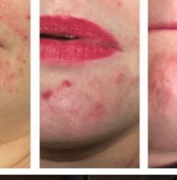 Mikrodemebrazyon yüz tedavisi