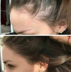Сыворотка от выпадения и для роста волос в наличии