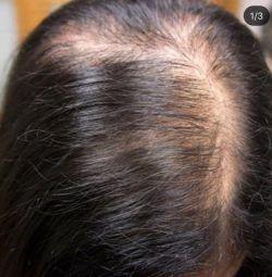 Φυσικά μαλλιά